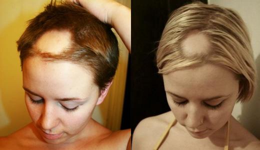 Сильное выпадение волос
