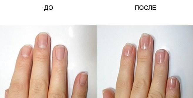 кутикула до и после
