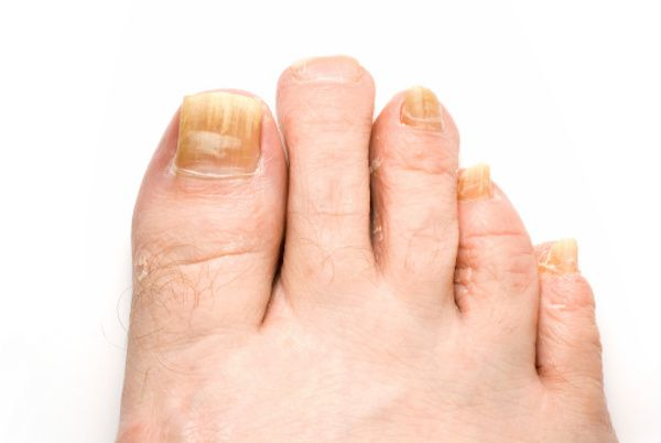 жить здорово с малышевой передача про грибок ногтей