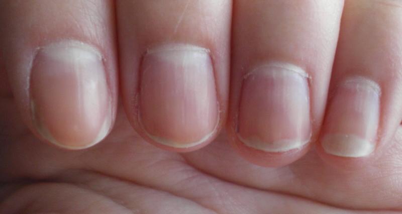 борозды на ногтях