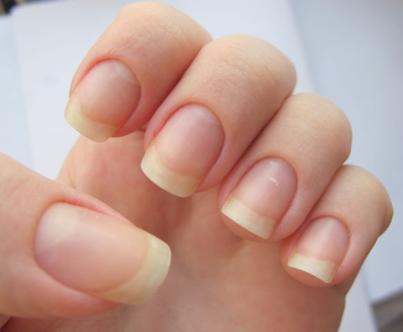 избавление от бороздок на ногтях