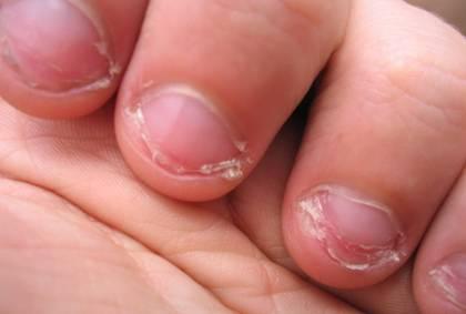 Обгрызенные ногти - причина заусенцев