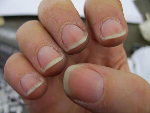 сухость пальцев рук