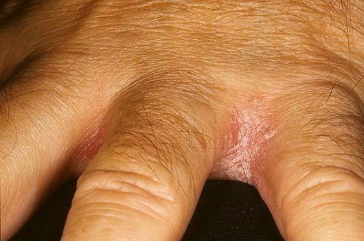Сохнет кожа между пальцами рук что это 157