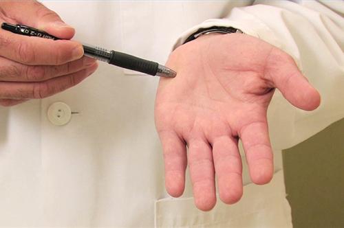 радикальные способы лечения гипергидроза рук
