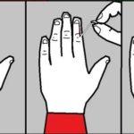 Заусенцы на пальцах: от чего появляются и лучшие способы лечения