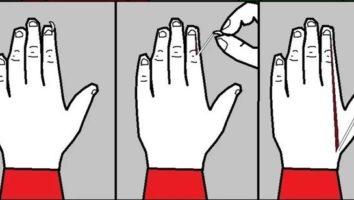 заусенец на пальце