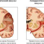 Инсульт: причины, симптомы, помощь, лечение
