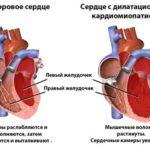 Алкогольная кардиомиопатия — симптоматика, причины развития и лечение
