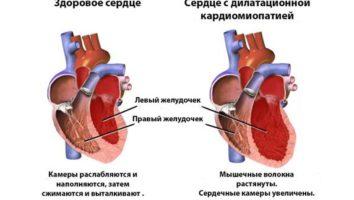 Алкогольная кардиомиопатия – что это такое