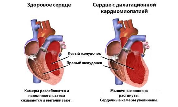 Алкогольная кардиомиопатия: симптомы, лечение и профилактика