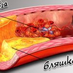 Безопасная чистка кровеносных сосудов – способы, рецепты, питание