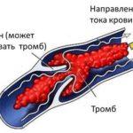 Что такое тромбоз. Симптомы и лечение.