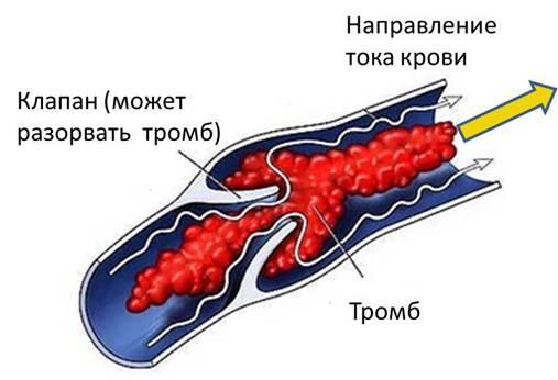 Тромбоз вен и артерий - что это такое