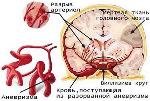 Геморрагический инсульт при разрыве аневризмы