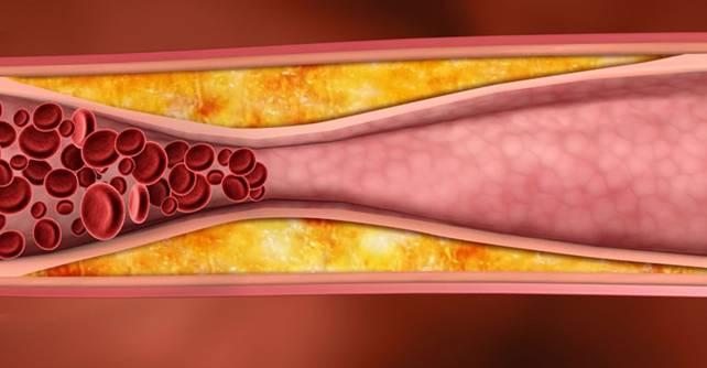 Отложение холестерина и образование холестериновых бляшек