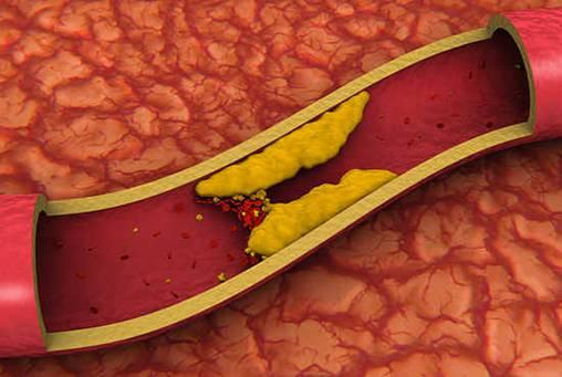 холестерин и его норма у мужчин и женщин