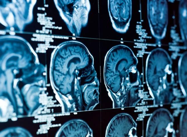 диагностика инфаркта головного мозга