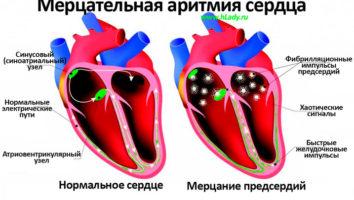 мерцательная аритмия сердца причины и симптомы