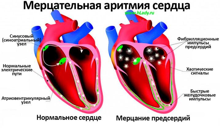 Мерцательная аритмия сердца - причины, симптомы и лечение