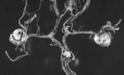 лечение аневризмы головного мозга