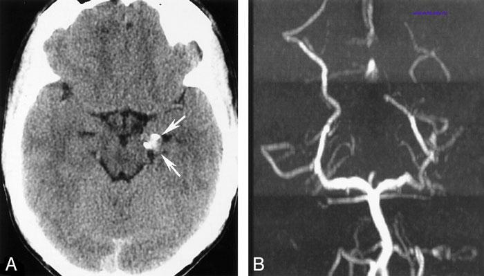 аневризма сосудов головного мозга диагностика