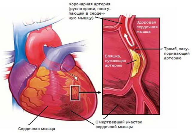 Обширный инфаркт - последствия и шансы выжить после лечения