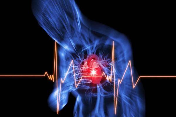 стенокардия симптомы и лечение