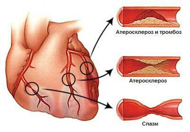 признаки стенокардии