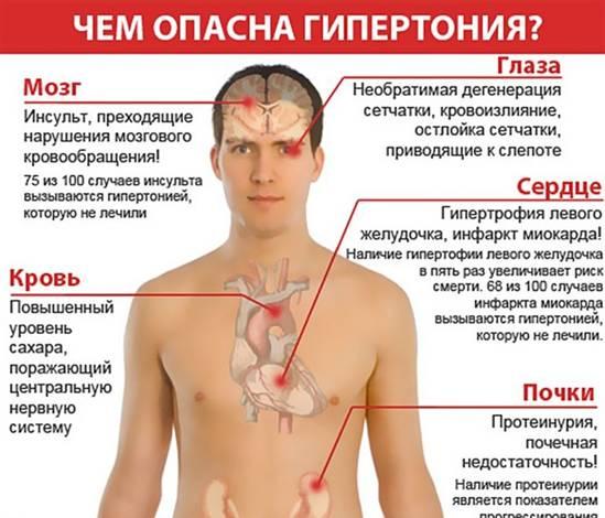 классификация симптомов гипертензии