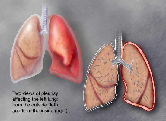 плевриты причины клинические проявления лечение осложнения