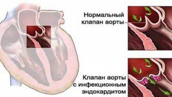 Что такое эндокардит