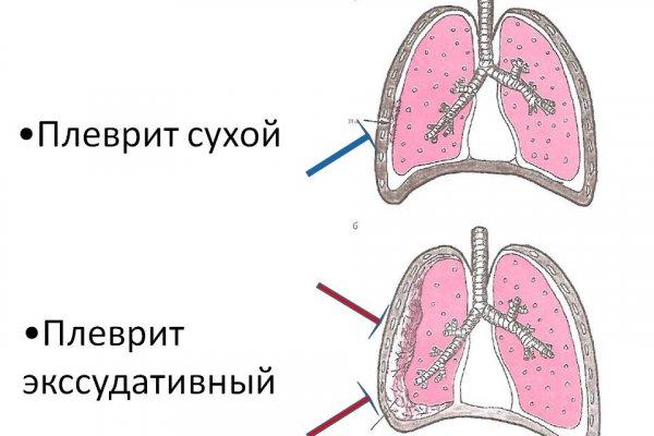 экссудативный плеврит