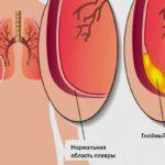 Что такое плеврит легких: разновидности, симптомы и лечение