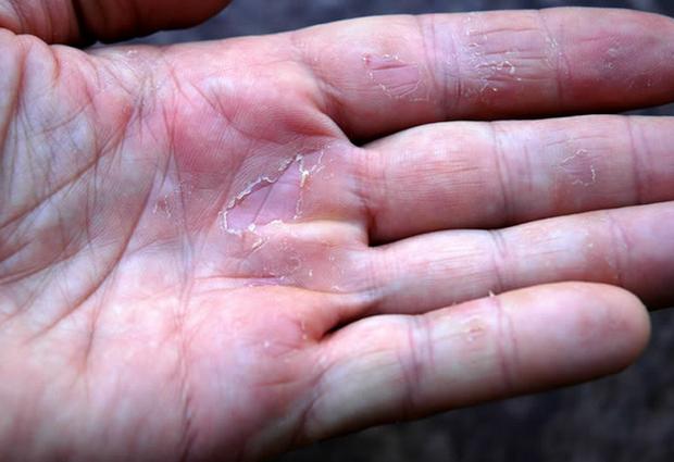 Изображение - Сухая кожа на суставах рук image001
