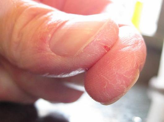 Изображение - Сухая кожа на суставах рук image004