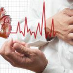 Инфаркт миокарда: причины возникновения, симптомы и лечение