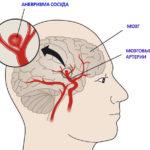 Что такое аневризма головного мозга, её признаки, лечение и последствия